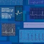 Libro :Electrocardiografía
