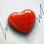 Memocardio No.3: Debemos estratificar el riesgo hemorrágico en Síndrome Coronario Agudo: SI